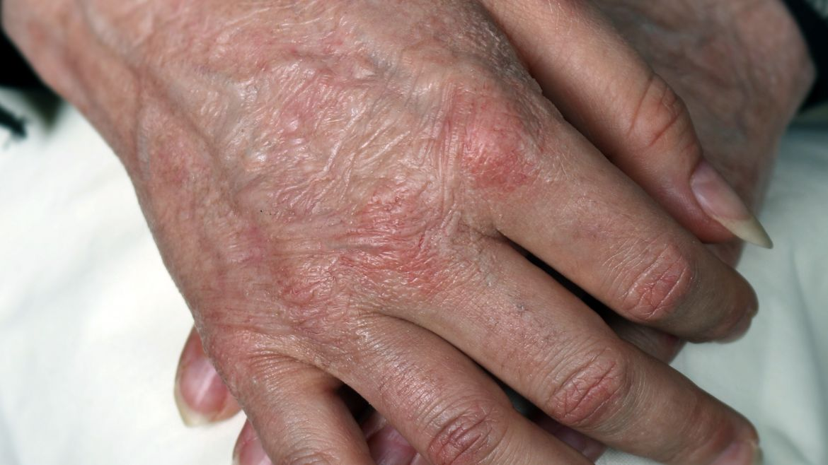 HN5 – Old Age Hands Small